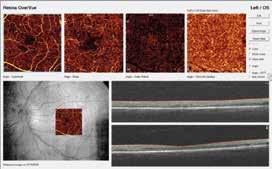 Angio-OCT: závažná NPDR s fokálnym diabetickým edémom makuly. Archív autorky