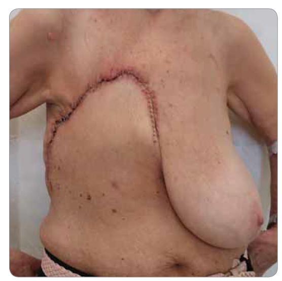 Operační rána zhojená per primam.