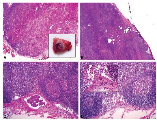 Nádorové postižení lymfatických uzlin u pacientky s adenoskvamózním karcinomem děložního hrdla. V každé ze 3 nalezených SLN byl peroperačně zastižen jiný typ nádorového depozita.<br> A – SLN č. 1 – makrometastáza viditelná prostým okem při makroskopickém hodnocení resekátu, průměr 6 mm (peroperační vyšetření, HE, 20x); B – SLN č. 2 – mikrometastáza, průměr 1,8 mm (peroperační vyšetření, HE, 40x); C – SLN č. 2 – mikrometastáza, průměr 0,3 mm (peroperační vyšetření, HE, 100x); D – SLN č. 3 – ITC, průměr 0,05 mm (peroperační vyšetření, HE, 100x a 400x).<br> <i>SLN – sentinelová lymfatická uzlina, ITC – izolované nádorové buňky</i>