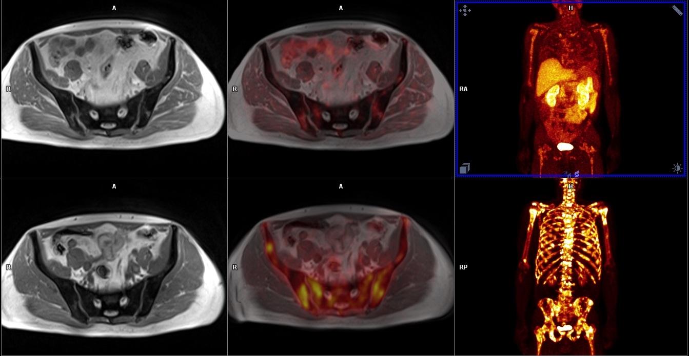 Porovnání PET/MR u kostní diseminace s podáním <sup>18</sup>F-FCH v horní řadě a <sup>18</sup>F-NaF v dolní řadě.