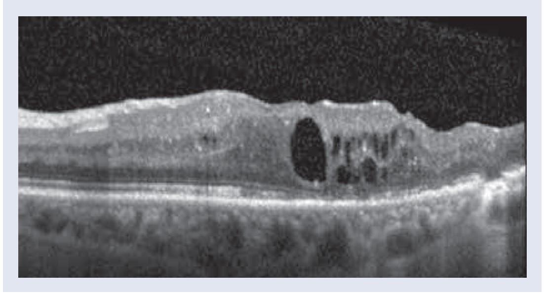 Obr. 3.3. OCT obraz. Po 4 mesiacoch postupne nárast hrúbky CST 376 μm, vzniká malý cystoidný edém, NKCOZ zostáva zatiaľ nezmenená 20/50. Snímky – archív autorky.