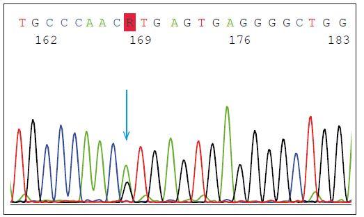 Heterozygotní mutace v místě sestřihu (tzv. splice-site) p.Val200Glyfs*18 (p.V200GfsX18) v genu GRN. Modrá šipka znázorňuje bodovou mutaci v intronu 7 (IVS7 + 1G > A), kde se předpokládá přeskočení exonu 7, posun čtecího rámečku a předčasné ukončení translace, které způsobí degradaci transkriptu.<br> Fig. 2. Heterozygous splice-site mutation p.Val200Glyfs*18 (p.V200GfsX18) in GRN gene. The blue arrow shows the point mutation in intron 7 (IVS7 + 1G > A) splice donor site predicted to cause exon 7 skipping, frameshift and premature translation termination, and is demonstrated to result in transcript degradation.