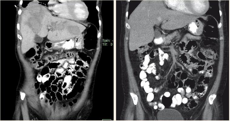 CT vyšetření – aktinomykóza jater kompletně vyléčená 6měsíční terapií klindamycinem.<br> Fig. 2. CT scan – hepatic actinomycosis completely cured with 6 months' clindamycin therapy