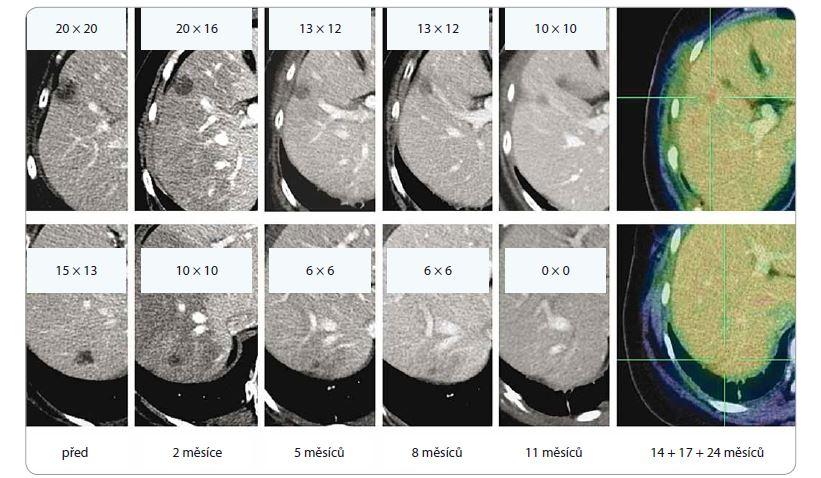 Efekt ozáření dvou jaterních metastáz lobulárního karcinomu levého prsu, dávka 3 × 18 Gy, předpis do mediánu dávky v PTV (PTV 51,7 ccm, D min. 48,7 Gy, D max. 56,6 Gy). Patrná postupná regrese obou ložisek, vznik a ústup postradiační reakce v jaterním parenchymu. Poslední obrázek v řadě ilustruje stacionární nález ve 14., 17. a 24. měsíci sledování.<br> PTV – plánovací cílový objem, D – dávka záření, Gy – Gray