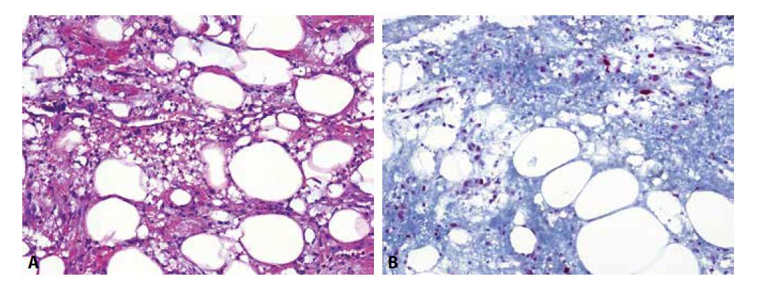 Traumatizovaná tuková tkáň (A) je jednou z lézí, která poměrně věrně napodobuje atypický lipomatózní tumor/dobře diferencovaný liposarkom. Situaci dále komplikuje exprese MDM2 proteinu v nenádorových endoteliích a obzvláště v makrofázích, kterých je zde značné množství (B).