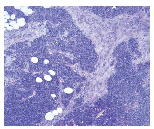 Přítomnost maligní epiteliální komponenty, stroma je zde suspektní, nicméně nesplňuje jednoznačná kritéria malignity.<br> Fig. 9: The presence of the malignant epithelial component, the stroma is suspicious, however, it does not meet criteria for malignancy.