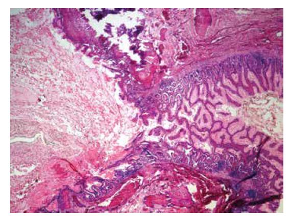 Ileum a stena Meckelovho divertikula vystlaná epitelom tenkého čreva (hematoxylín-eozín, zväčšenie 40x).