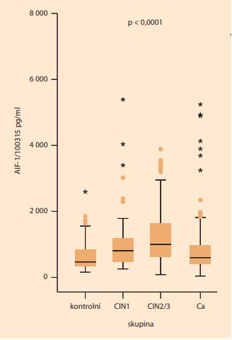 Na tomto grafu je znázorněno zvýšení sérové hladiny AIF-1 u pacientek s karcinomem hrdla děložního (Ca)  a prekancerózou hrdla děložního (CIN1, CIN2/3) v porovnání s kontrolami (p < 0,0001). <br> Graph 2. This graph shows the increase in serum AIF-1  levels in patients with cervical cancer (Ca) and cervical  intraepithelial neoplasia (CIN1, CIN2/3) compared to  controls (P < 0.0001).