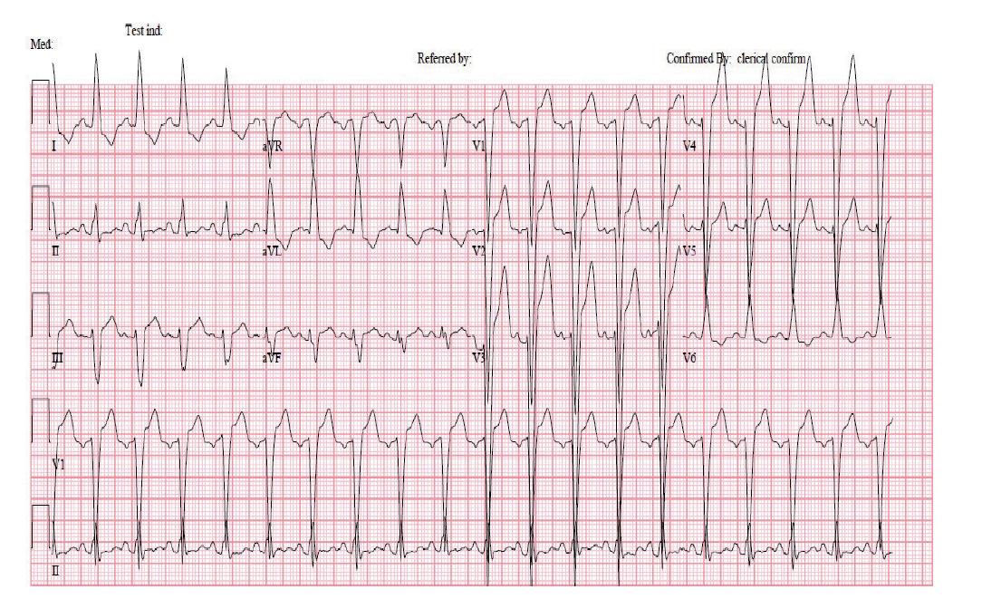 Elektrokardiogram nemocné po podání cyklofosfamidu: patologickými nálezy jsou sinusová tachykardie s chronickým blokem levého Tawarova raménka a prodloužený QTc interval