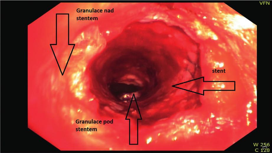 Komplikující granulační tkáň nad a více pod stentem