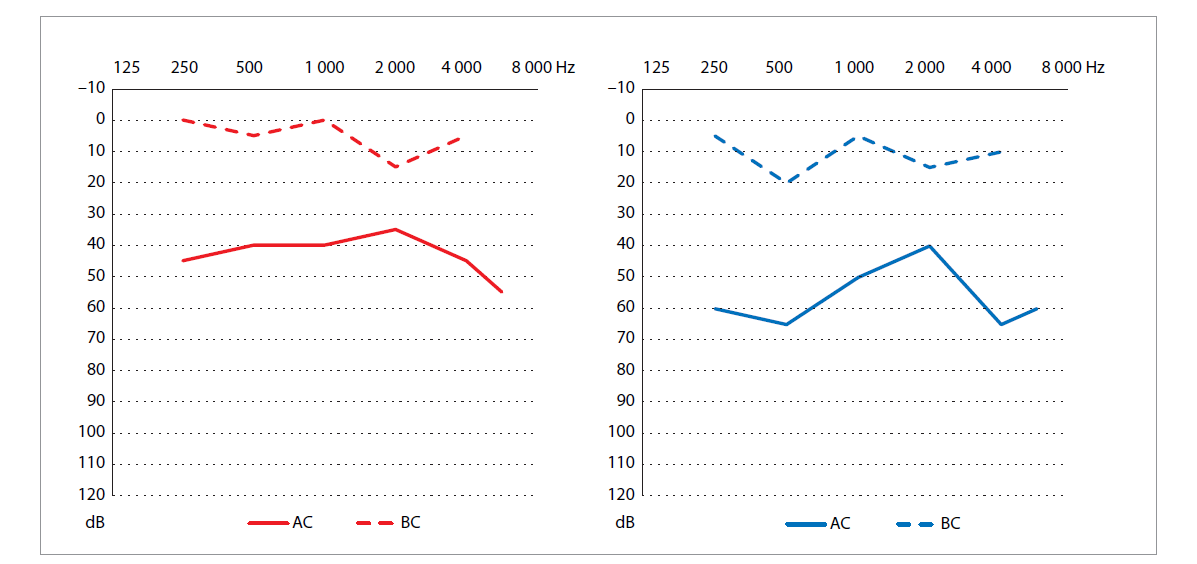 Predoperačný audiogram pacienta 1.<br> Graph 1. Preoperative audiogram of the patient 1.