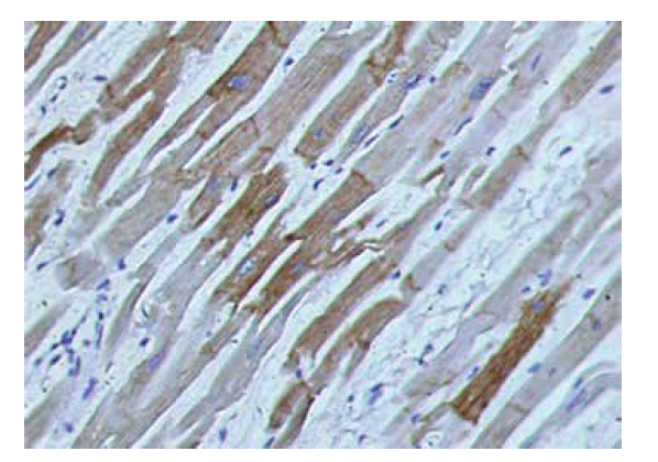 Deplécia dezmínu v ischemicky zmenenom myokarde (muž, 51 r.; 200x)