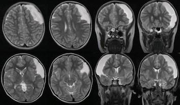 Fig. 1. A Galassi III middle fossa cyst diagnosed at the age of 6.<br> Obr. 1. Galassi III cysta střední jámy lebni diagnostikována v 6 letech.