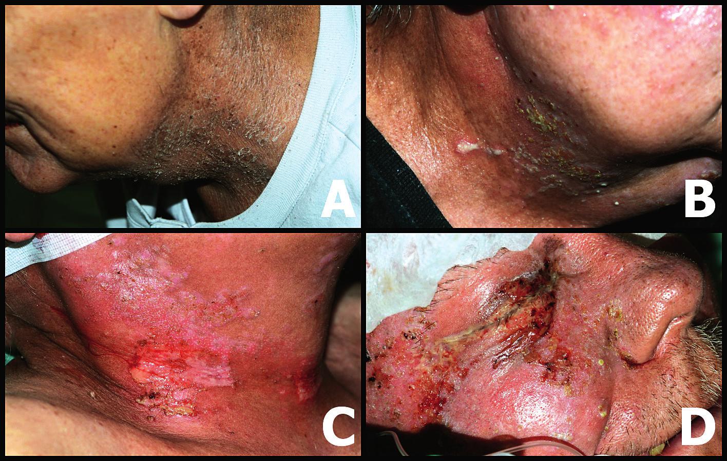 Stupně dermatitidy podle klasifikace RTOG <br> A – dermatitida 1. stupně – suchá deskvamace, B – dermatitida 2. stupně – vlhká deskvamace, C, D – dermatitida 3.–4. stupně  (fotoarchiv autorky)