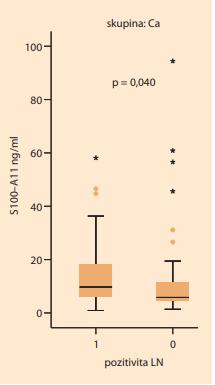Na tomto grafu je znázorněno  významné zvýšení sérové hladiny  S100–A11 (p > 0,040) u pacientek  s pozitivními lymfatickými uzlinami  (1) ve srovnání s pacientkami s negativními lymfatickými uzlinami (0).<br> Graph 1. This graph shows a significant  increase in serum S100–A11 levels  (P > 0.040) in patients with positive  lymph nodes (1) compared to those  with negative lymph nodes (0).