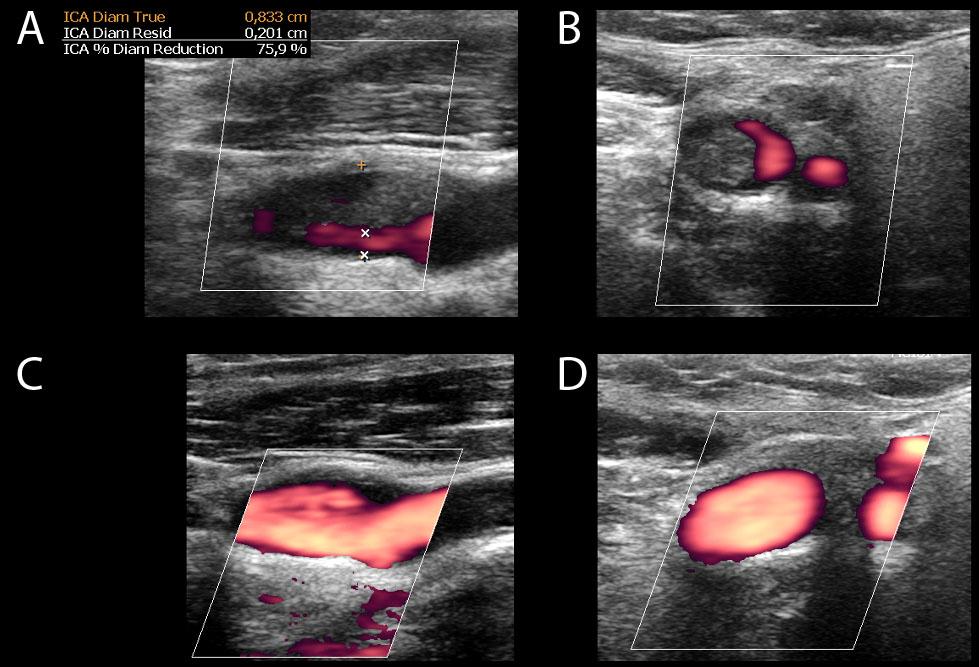 CUS of left ICA demonstrates thrombus and 75% stenosis on longitudinal (A) and transverse (B) views. After nine days, repeated CUS shows complete thrombus resolution on longitudinal (C) and transverse (D) views. CUS – carotid ultrasonography; ICA – internal carotid artery<br> Obr. 3. CUS levé ACI prokazuje trombus a 75% stenózu v longitudinálním (A) a transverzálním (B) zobrazení. CUS opakované po devíti dnech ukazuje kompletní vymizení trombu v longitudinálním (C) a transverzálním (D) zobrazení. CUS – ultrasonografie karotid; ACI – arteria carotis interna