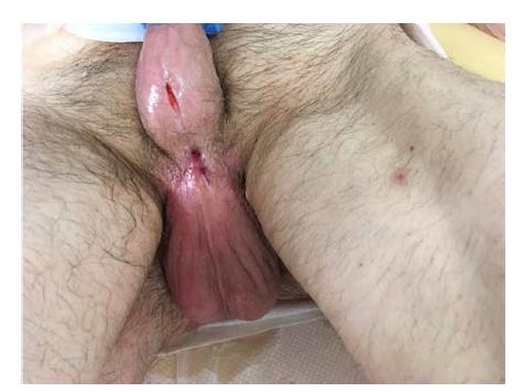 Stejná oblast po sekundárním zhojení v odstupu dalších šesti týdnů; uretra proximálně i distálně volně prostupná pro katétr Ch 18<br> Fig. 15. The same area following secondary healing after another six weeks. The urethra freely passable with a Ch 18 catheter both proximally and distally