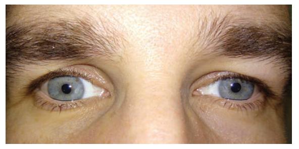 Symetrie kožních řas horních víček za 1 rok po antrostomii vpravo