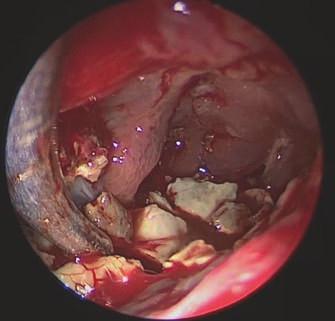 Endoscopic view of the left frontal sinus via an external approach, revealing yellowish, hard stone-like fungal masses inside the cavity.<br> Obr. 2. Endoskopický pohled z externího přístupu do levé frontální dutiny, ve které jsou viditelné nažloutlé, kamenně tuhé, mykotické hmoty.
