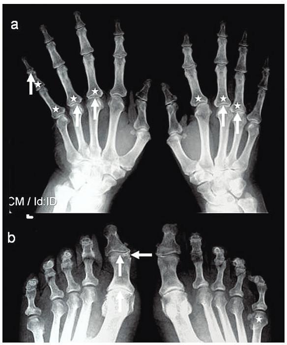 RTG snímek rukou (a) a nohou (b) ve AP projekci: periartikulární poróza (*), zúžení kloubní štěrbiny (↑) a eroze (←).