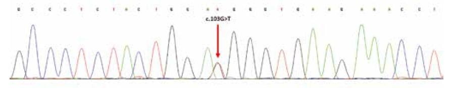 Sekvenční analýza exonu 2 genu H3F3A; šipka označuje heterozygotní substituční mutaci v pozici c.103G>T; resp. náhradu aminokyselin glycin za tryptofan (p.Gly35Trp; dle původního označení G34W).