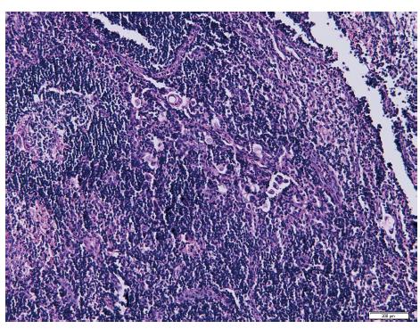 Izolované nádorové buňky v sentinelové lymfatické uzlině po barvení hematoxylinem-eozinem (Ústav klinické a molekulární patologie LF UP a FN Olomouc)