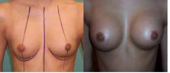 Obr. 3a Augmentace před operací, anatomické implantáty 225 ml<br> Obr. 3b Augmentace před operací, anatomické implantáty 225 ml – po operaci