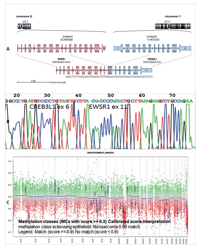 A: Diagnostikovaný fúzní gen EWSR1-CREB3L1 u dětské pacientky se sklerotizujícím epiteloidním fibrosarkomem. Analýza pomocí Arriba software https://github.com/suhrig/arriba. B: Sekvenační analýza fúzního produktu EWSR1-CREB3L1 pomocí Sangerovy sekvenace. C: Metylační analýza pomocí metylační SNParray.