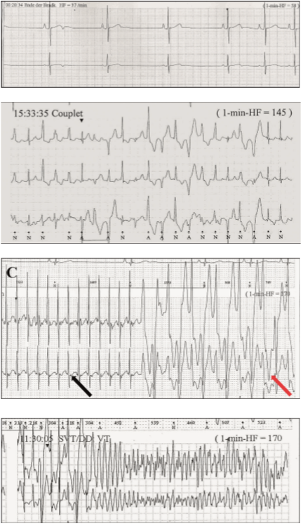 Katecholaminergní polymorfní komorová tachykardie. <br> 4A. Klidová EKG křivka. <br> 4B.  Zátěžové komorové extrasystoly.            <br> 4C.  Síňová tachykardie (černá šipka) abidirekční komorová tachykardie (červená šipka).           <br> 4D. Komorová fibrilace. <br>