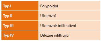 Makroskopické dělení pokročilých nádorů podle JGCA<br> Tab. 1: Macroscopic division of advanced tumours according to JGCA