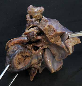 Syndrom hypoplatického levého srdce. Pohled zleva na hypoplastickou levou komoru. Srdce je po částečné chirurgické korekci (proběhla 1. fáze Norwoodovy procedury), na levé straně snímku je patrný goretexový Sano shunt tvořící komunikaci mezi dominantní pravou komorou a plicní arterii.
