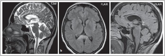 Pacient s AQP4-IgGpozNMOSD, v sagitální rovině v T2 váženém obraze jsou patrná vícečetná, místy rozsáhlejší ložiska v oblasti corpus callosum (a), rozsáhlé ložisko v oblasti splenia detailněji zobrazeno v transverzální rovině v sekvenci FLAIR (b). Při kontrole za 2 roky je patrná výrazná redukce ložiskového postižení s výraznou atrofi zací corporis callosi (c).<br> Fig. 6. AQP4-IgGposNMOSD patient, T2-weighted image, sagittal cut, multiple (and more extensive in some places) lesions in corpus callosum (a), FLAIR, extensive lesion in the splenium (b). Signifi cant atrophy of the corporis callosi is observed at 2-year follow-up (c).
