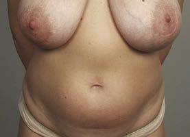 Obr. 4a 43letá před abdominoplastikou a korekcí prsů (estetická indikace)