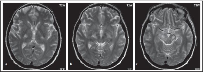 Pacient s MOG-IgGpozNMOSD, stejný pacient jako na obr. 3. Je patrný zvýšený signál v T2 váženém obraze v oblasti pyramidové dráhy bilat. – v zadních ramínkách kapsuly interny (a, b), v cerebrálních pedunkulech mozkového kmene (c).<br> Fig. 7. MOG-IgGposNMOSD patient, the same patient as in Fig. 3. High signal is evident in T2-weighted image bilaterally in the pyramidal tract – in the dorsal limb (a, b), in cerebral peduncles (c).