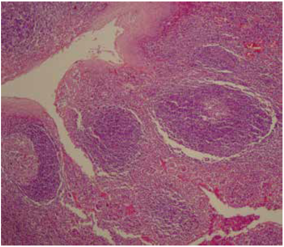 Normal structure of the right palatine tonsil (H&E, 140x).