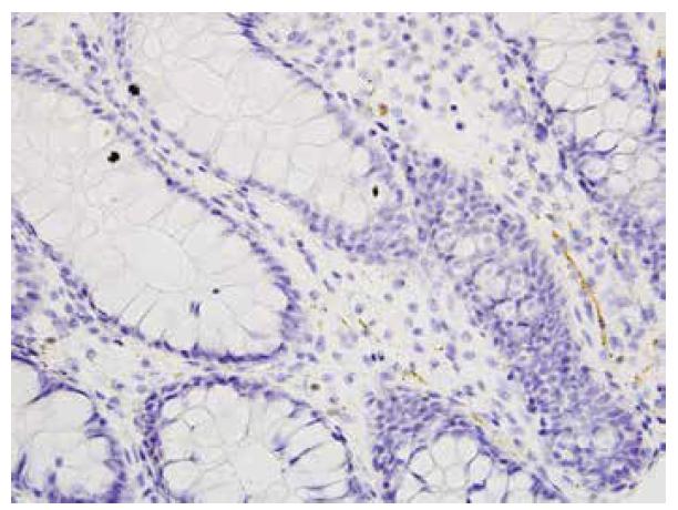 Ojedinělá kalretinin pozitivní vlákna v lamina propria mucosae, negat- HN, 2 cm od anu (400x).