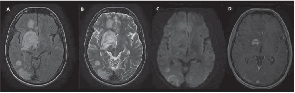 MR mozku – rozsáhlé ložiskové postižení intrakraniálních struktur s maximem v oblasti bazálních ganglií vpravo, některé léze jsou expanzivní, s vazogenním edémem.<br> Fig. 1. Brain MRI – extensive focal involvement of intracranial structures, especially in right-sided basal ganglia; some lesions are expansive with vasogenic edema.