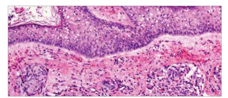 Histologické vyšetření meningeomu I. stupně podle WHO, barvení hematoxylin- eozin. Je přítomný fragment tkáně kryté rohovějícím dlaždicobuněnčným epitelem, pod kterým jsou v překrveném, lehce edematózním vazivovém stromatu zastiženy nádorové struktury tvořené hnízdy buněk vzhledu buněk meningoteliomatózních, s poměrně bohatou eozinofilní cytoplazmou, oválnými jádry s mírnou anizokaryózou, jemným chromatinem, bez mitóz a bez výraznějších atypií.<br> Fig. 3. Histological examination of WHO grade I meningoma, hematoxylin-eosin staining. A fragment of tissue covered by horned squamous cell epithelium is presented, under which tumor structures formed by nests of meningotheliomatous cell-like cells with relatively rich eosinophilic cytoplasm, oval nuclei with mild anisocaryosis and mild chromosome, and mild chromium.