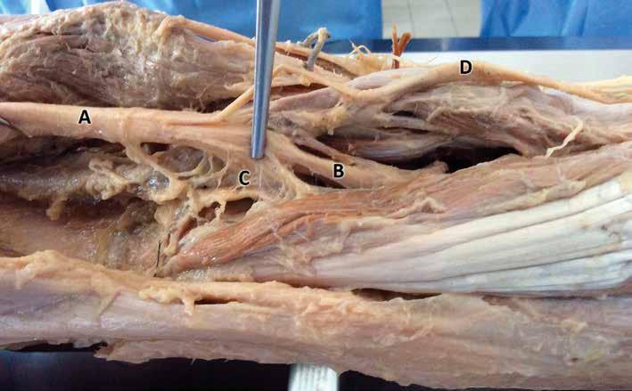 N. ischiadicus anatomický preparát. A. nervus ischiadicus, B. nervus tibialis, C. nervově cévní zásobování popliteální části kolena, D. nervus peroneus