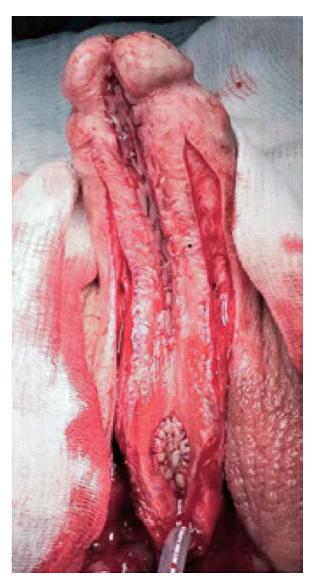 Aplikace bukálního štěpu dorzálně inlay dle ASOPY<br> Fig. 5. Dorsal inlay bucal mucosal graftig according to ASOPA