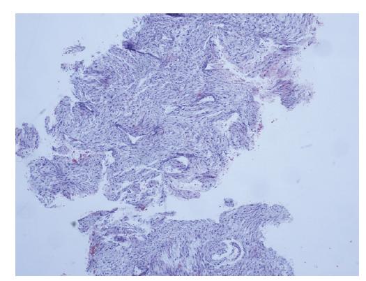 Core cut biopsie, fragment pocházející z fibroadenomu, nelze vyloučit přítomnost fyloidního nádoru.<br> Fig. 4: Core cut biopsy, fragment of fibroadenoma, the presence of a phyllodes tumor cannot be excluded.