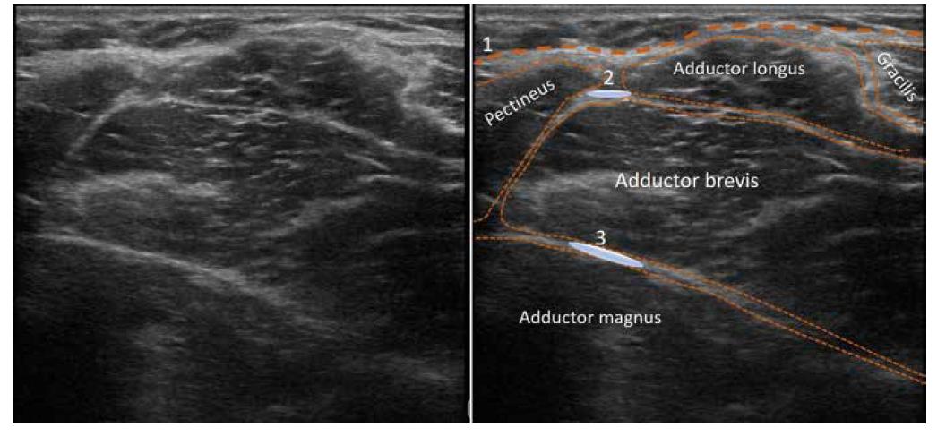 Ultrazvukový obraz proximální mediální části stehna. 1. fascia lata, 2. aplikační oblast pro blokádu n. obturatorius anterior, 3. aplikační oblast pro blokádu n. obturatorius posterior