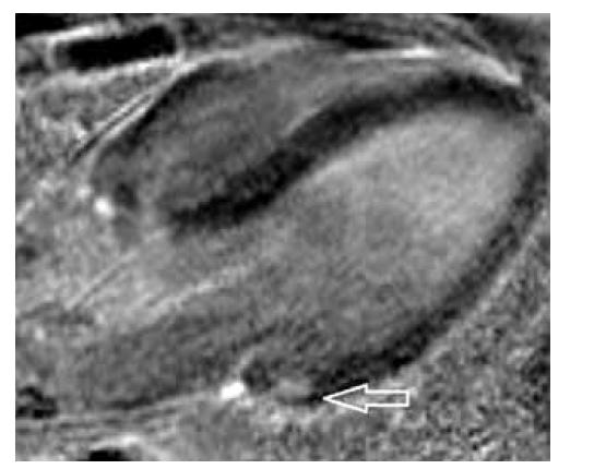 Obr. 3c. T1 PSIR sken v double outlet projekci v dvoudutinové dlouhé ose srdeční s korelátem časného sycení intramyokardiálně (šipka) v kolmé ose na osu krátkou.<br> Fig. 3c. T1W PSIR scan in double outlet plane in the two-chamber long axis with the correlate of early saturation intramyocardially (arrow) in the perpendicular axis to the short axis.