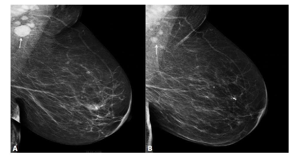 MG l. sin MLO projekce<br> A) Před NCHT. Centrálně v levém prsu neostře ohraničená denzita, odpovídá invazivnímu NST ca, tumor označený klipem. Denzní zvětšená patologická lymfatická uzlina v levé axile (označena šipkou). B) Po NCHT. Centrálně v levém prsu klip, bez rezidua ca. V levé axile výrazná regrese patologické lymfatické uzliny (označena šipkou).<br> Fig. 6: MG l.sin MLO projection<br> A) Before NCT. A mass of irregular density centrally in the left breast, corresponding to invasive NST cancer; the tumour is marked with a clip. Dense, enlarged, pathological lymph node in the left axilla (arrow). B) After NCT. Centrally located clip in left breast with no residual tumour. Significant regression of the pathological lymph node in the left axilla (marked by the arrow).