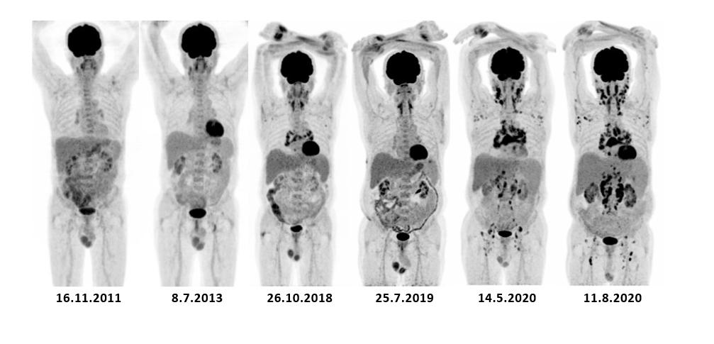 Postupný vývoj lymfadenopatie v průběhu sledování při PET/CT zobrazení za období 2011–2020.