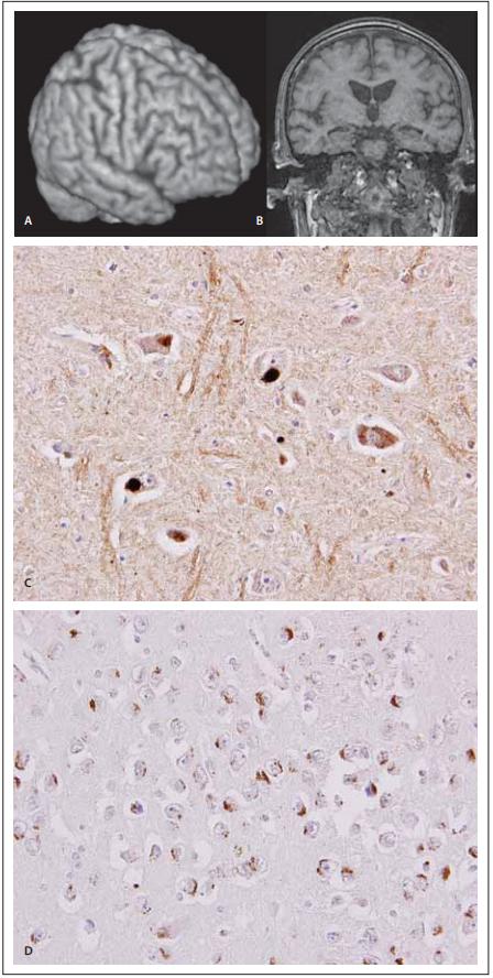 MR a neuropatologie  u frontotemporální demence  s amyotrofi ckou laterální sklerózou.<br> Fig. 3. MRI and neuropathology in frontotemporal dementia and a myotrophic lateral sclerosis.
