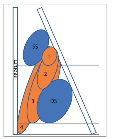 Klasifikace postižení nosní dutiny pomocí Nasal polyp score. SS – střední skořepa, DS – dolní skořepa, 1 – polyp po dolní hranu střední skořepy, 2 – polyp pod dolní hranu střední skořepy, 3 – polyp po dolní hranu dolní skořepy nebo polyp mediálně od střední skořepy, 4 – polyp po spodinu dutiny nosní<br> Fig. 2. Classification of nasal involvement using the Nasal polyp score. SS – middle turbinate, DS – lower turbinate, 1 – polyp to the lower edge of the middle turbinate, 2 – polyp below the lower edge of the middle turbinate, 3 – polyp to the lower edge of the lower turbinate or polyp medially from the middle turbinate, 4 – polyp to the base of the nasal cavity