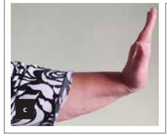 (a) Žena (50 let), po opakovaných ortopedických výkonech pro pakloub humeru. Během posledního výkonu způsobena trakčně-lacerační léze n. radialis. Za 3 týdny mikrochirurgická revize, pahýly zavzaty v jizvě (šipky). (b) Po jejich seříznutí do zdravé tkáně nervu byl defekt délky 3,5 cm vykryt štěpy z n. suralis. (c) Po 9 měsících výrazná úprava funkce – extenze zápěstí 4/5, extenze prstů, abdukce a extenze palce 3/5.<br> Fig. 3. (a) A woman (50 years old), after repeated orthopedic procedures for the humeral pseudoarthrosis. The last surgery was complicated by a traction-laceration injury of the radial nerve. The microsurgical revision was performed 3 weeks post-injury. The stumps trapped in the scar (arrows) were cut into healthy nerve tissue. (b) Then, a 3.5 cm long defect was fi lled with grafts from the sural nerve. (c) A signifi cant improvement of the hand function with wrist extension 4/5, fi nger extension, abduction and thumb extension 3/5 was seen after 9 months.