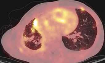 Obr. 4. Maligní infiltrace plicního parenchymu a pleury bilaterálně, více vpravo, jednotlivá ložiska a infiltráty vykazují smíšenou FDG-aviditu.