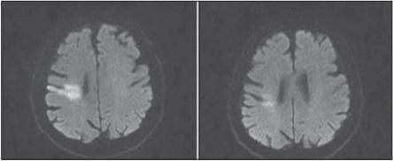 Difúziou vážená MR mozgu, b1000 – (a) po zhoršení klinického stavu;  (b) predoperačne.<br> Fig. 2. Brain MR diff usion weighted image, b1000 – (a) after clinical deterioration;  (b) before surgery.